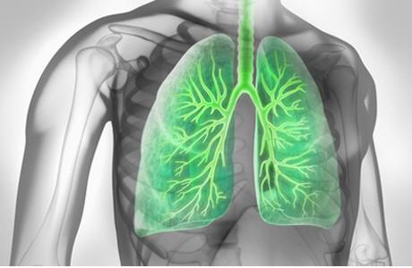 Bronchitis und Training: Schlechte Kombination